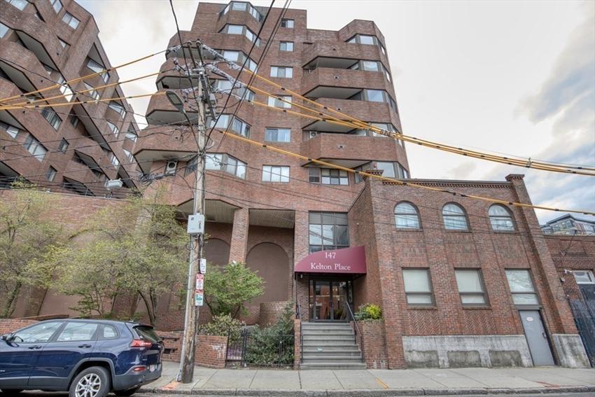 147 Kelton St, Boston, MA Image 13